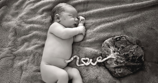 07-umbilical-love.w1200.h630