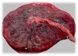 The-human-placenta-300x214